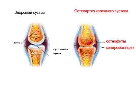 артроз в коленном суставе 1-2 степени коленном суставе